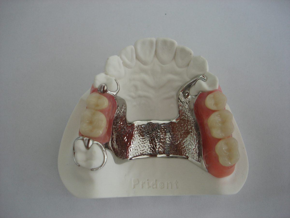 Cast Partial Denture
