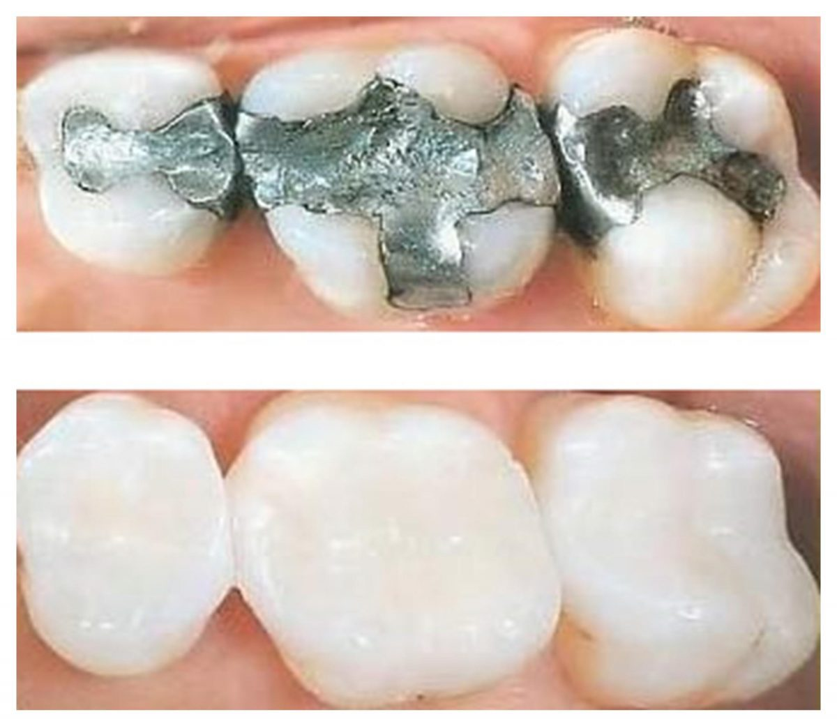 Cosmetic Crown & Filling